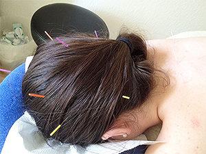 Kopf-Akupunktur Berlin Steglitz