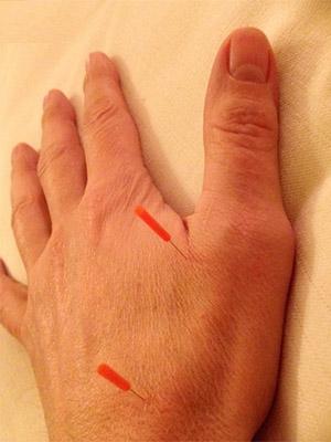 Hand Akupunktur Berlin Steglitz