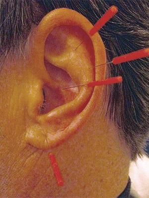 Rauchen abgewöhnen mit Akupunktur